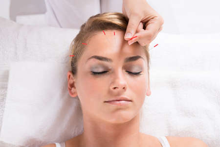 acupuncture needles: Closeup of hand performing acupuncture therapy on patients head at salon Stock Photo