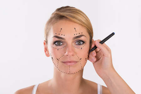 plastic surgery: Portrait of young woman undergoing facelift surgery over white background