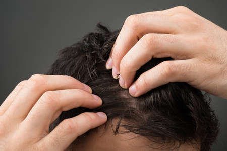 Cropped image of man suffering from hair loss against gray background Archivio Fotografico