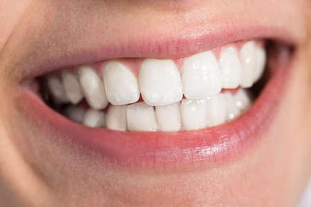 Nahaufnahme der jungen Frau, die gesunde weiße Zähne lächelnd
