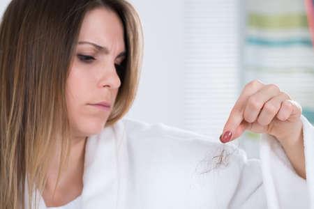 calvicie: Retrato de una mujer joven que sufre de pérdida de pelo Foto de archivo