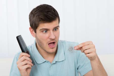 calvicie: El hombre joven que sostiene el peine Mirando a la pérdida del cabello
