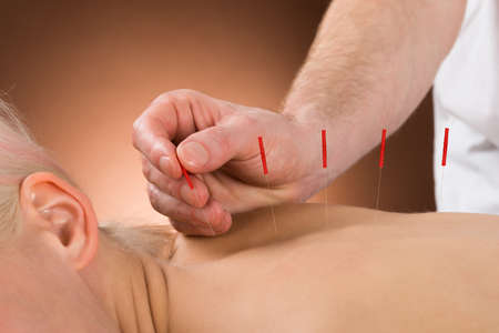 acupressure hands: Close-up Of A Young Person Receiving Acupuncture Treatment In A Beauty Spa Stock Photo