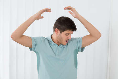 badly: Man With Hyperhidrosis Sweating Very Badly Under Armpit