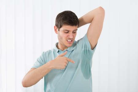 axila: Hombre joven con hiperhidrosis axilar que apunta a un sudor