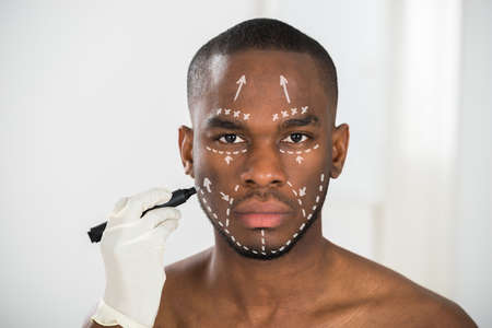 correction lines: Close-up Of Persons Hand Drawing Correction Lines On African Mans Face