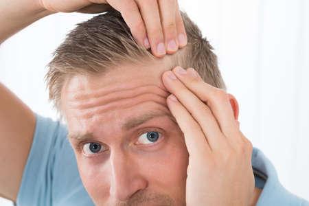 piojos: Primer plano del hombre joven que examina su cabello en casa