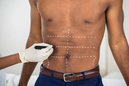 correction lines: Close-up Of Persons Hand Drawing Correction Lines On Abdomen Of African Man Stock Photo