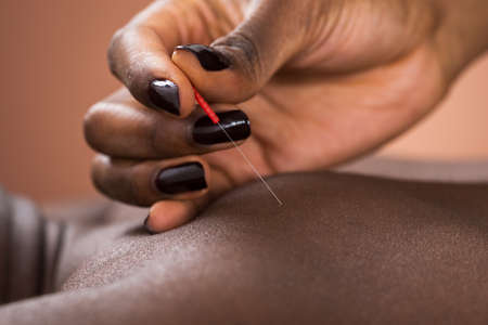 acupuncturist: Close-up Of Therapist Giving Acupuncture Treatment To Man In Spa Stock Photo