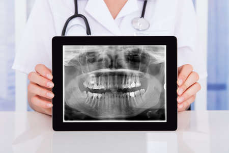 Vrouwelijke Arts die digitale tablet met tanden X-ray On It Stockfoto - 56931328