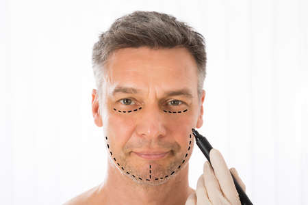 Close-up Of Surgeon Hands Drawing Correction Lines On Man Face With Marker Stock Photo