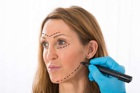 surgery: Close-up Of Surgeon Hands Drawing Correction Lines On Woman Face With Marker