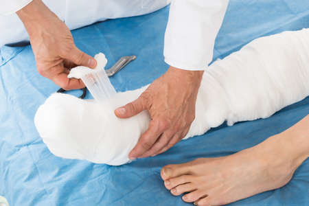plaster foot: Close-up Of Doctor Hand Tying Bandage On The Leg Of Patient In Clinic