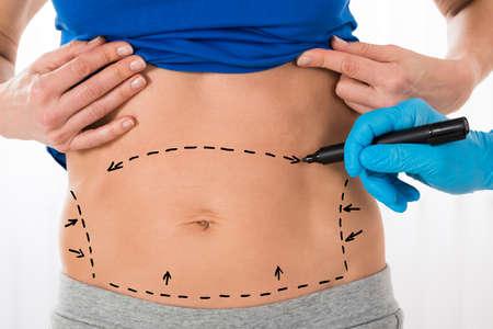 Close-up de Chirurgien Mains Dessin Lignes de correction Sur Femme estomac