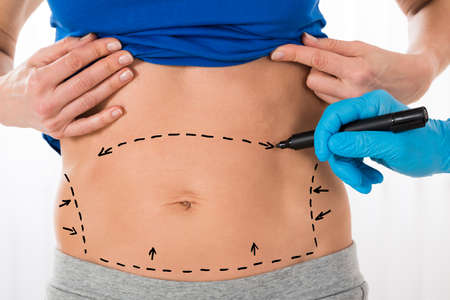 Close-up Of Surgeon Hands Drawing Correction Lines On Woman Stomach