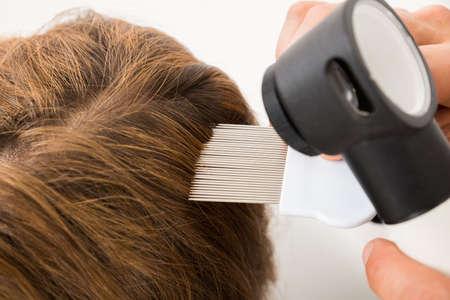 piojos: Primer plano de la mano del doctor con el peine Y dermatoscopio Haciendo tratamiento del cabello del paciente