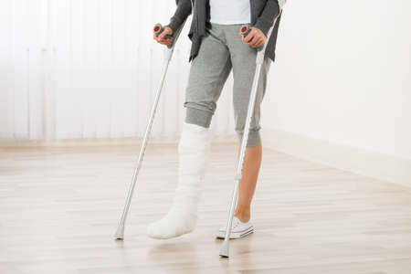 plaster cast: Close-up Of Woman Leg In Plaster Cast Using Crutches While Walking