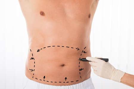 Primer plano del dibujo persona Manos Líneas de corrección sobre el estómago
