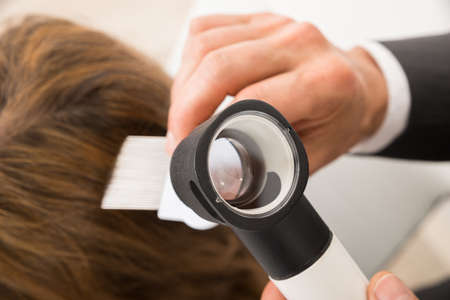 Close-up Of Doctor Hand With Comb And Dermatoscope Doing Treatment Of Patients Hair Stock Photo