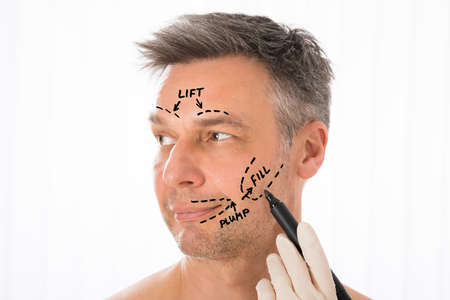 hair man: Close-up Of Surgeon Hands Drawing Correction Lines On Man Face With Marker Stock Photo