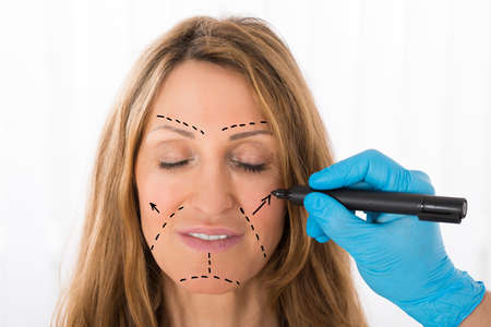 correction: Close-up Of Surgeon Hands Drawing Correction Lines On Woman Face With Marker