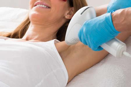 depilacion: Mujer madura que reciben tratamiento de eliminación del vello con láser de las axilas