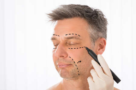 Close-up Of Surgeon Hands Drawing Correction Lines On Man Face With Marker Фото со стока