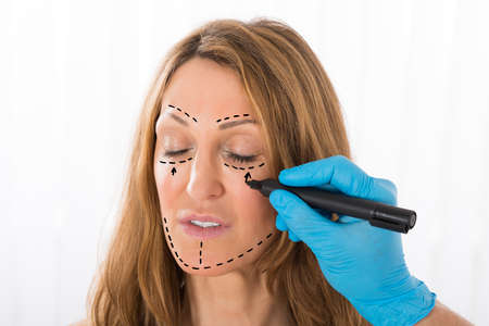 correction lines: Close-up Of Surgeon Hands Drawing Correction Lines On Woman Face With Marker