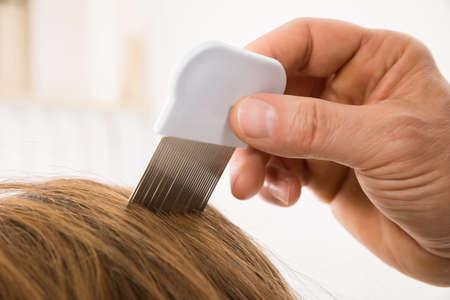 piojos: Primer plano mano de la persona Uso de Peine de los piojos en el cabello del paciente