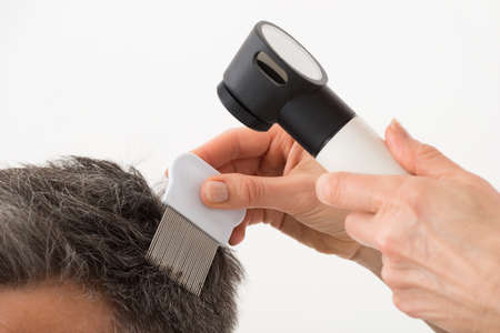 Close-up Of Person Hand With Dermatoscope Examining Patients Hair Stock Photo
