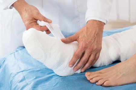 pierna rota: Primer plano de la mano del doctor que ata el vendaje en la pierna de paciente en la clínica