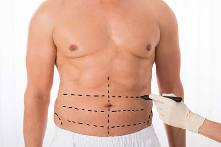 perforation: Close-up Of Person Hands Drawing Perforation Lines On Stomach With Marker