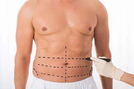 cuerpo hombre: Primer plano de la persona Manos Dibujo Líneas Perforación en el estómago con marcador Foto de archivo