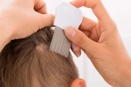 piojos: Primer De La Mujer médico que le realizó el pelo de Tratamiento en muchacho con el peine Foto de archivo