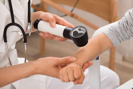 doctores: Primer plano médico examina la piel de paciente niño con dermatoscopio