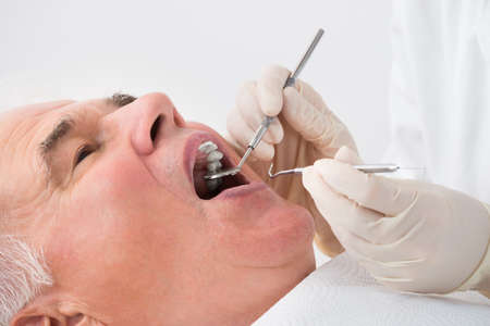 man doctor: Close-up Of A Senior Man Undergoing Dental Treatment In Clinic