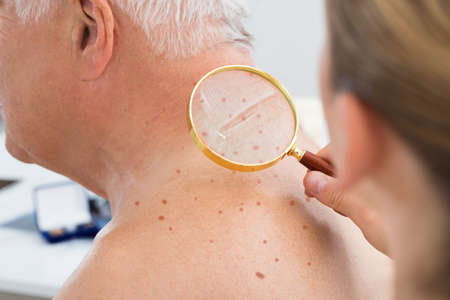 birthmark: Close-up Of A Doctor Checking Skin Of Senior Male Patient With Magnifying Glass Stock Photo