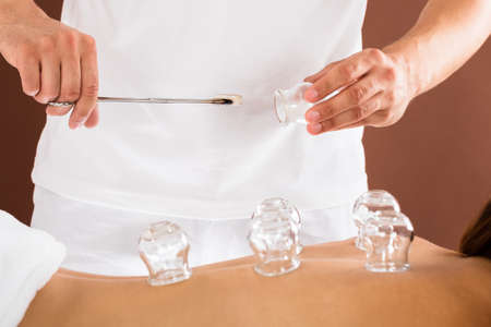 Close-up Of A Therapist Hand Giving Cupping Treatment To Person In Beauty Spa Foto de archivo
