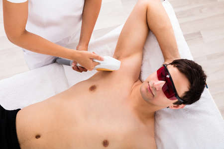 High Angle View Of A Therapist Giving Laser Epilation Treatment On Mans Armpit Stock Photo