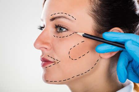 외과 의사 수정의 근접 촬영 성형 수술에 대 한 젊은 여자 얼굴에 선을 그리기