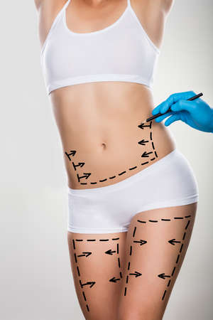 Nahaufnahme einer Person Hand Zeichnung Linien auf Frau Abdomen und Bein Standard-Bild - 64951279