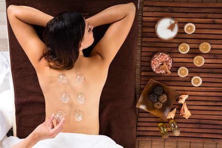 Erhöhte Ansicht einer entspannten jungen Frau empfangen Schröpfen Behandlung auf der Rückseite