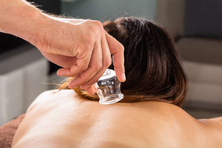 cupping therapy: Close-up Of A Therapist Placing Cups On Womans Back In Spa