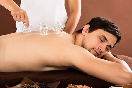 cupping therapy: Persons Hand Giving Cupping Treatment To Relaxed Young Man Stock Photo