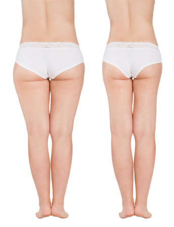 Liposuction Before After Stock Photo