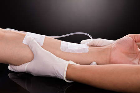 catheters: Close-up Of A Doctor Holding Patients Hand With Iv Drip