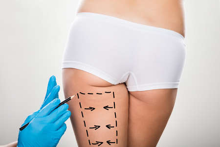 Primer plano de un cirujano mano que sostiene el bisturí en la pierna de la mujer marcados con líneas Foto de archivo