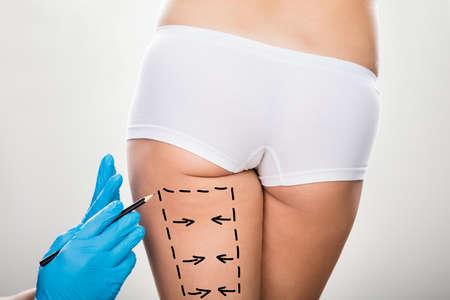 elasticidad: Primer plano de un cirujano mano que sostiene el bisturí en la pierna de la mujer marcados con líneas Foto de archivo