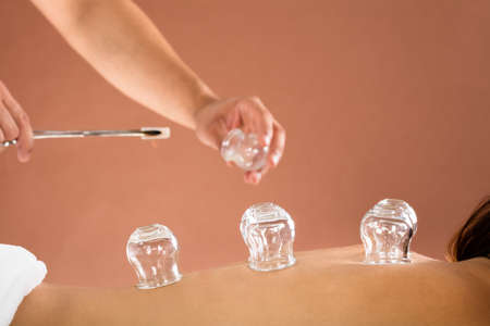 cupping therapy: Close-up Of A Therapist Hand Giving Cupping Treatment To Person In Beauty Spa Stock Photo