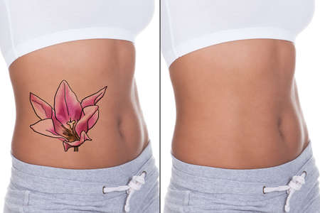 Close-up Of Woman Stomach Showing Before And After Laser Tattoo Removal Treatment